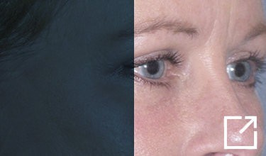 2-weeks-after-upper-and-lower-eyelid-lift-fraxel-repair-lower-eyelids-juvederm-tear-trough Before and After Picture