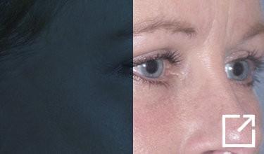 2-weeks-after-upper-and-lower-eyelid-lift-fraxel-repair-lower-eyelids-juvederm-tear-trough