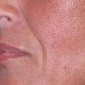 Juvederm before and after Boston