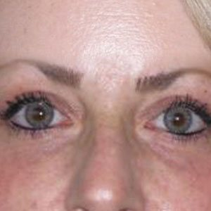 Eyelid lift before and after Boston