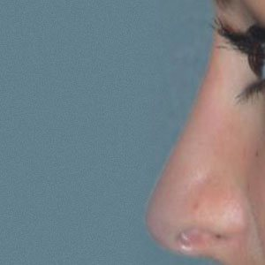 Rhinoplasty before and after Boston